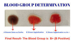 how to determine blood type without test